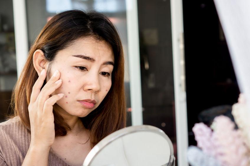 ayurveda medicine for skin problems
